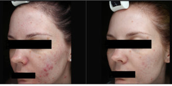 Give Acne the Boot!